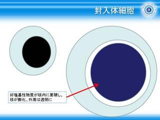 9封入体細胞.jpg