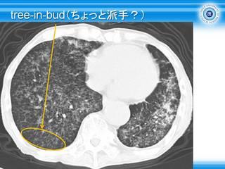 9tree-in-bud(ちょっと派手?).jpg