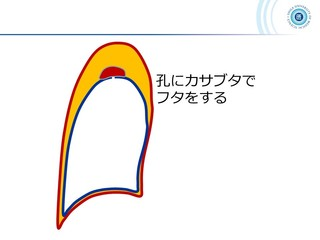 スライド51.JPG