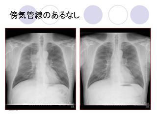 傍気管線.jpg