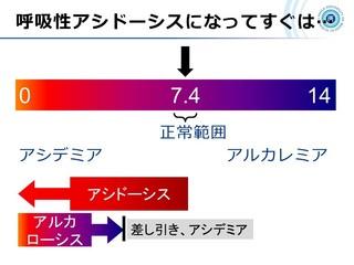 血ガス呼吸管理図スライド11.jpg