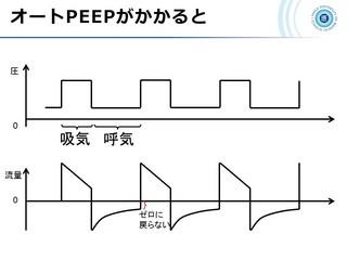 血ガス呼吸管理図スライド156.jpg