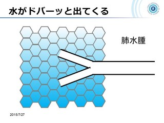 血ガス呼吸管理図スライド157.jpg