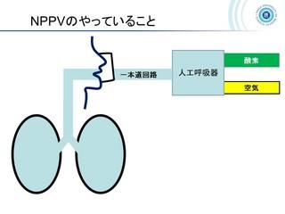 血ガス呼吸管理図スライド159.jpg