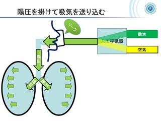 血ガス呼吸管理図スライド160.jpg