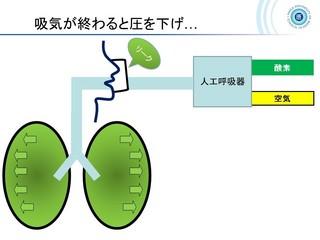 血ガス呼吸管理図スライド161.jpg