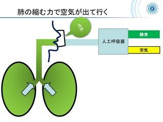 血ガス呼吸管理図スライド162.jpg