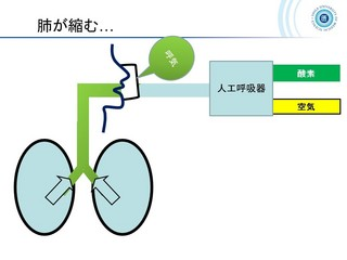 血ガス呼吸管理図スライド163.jpg