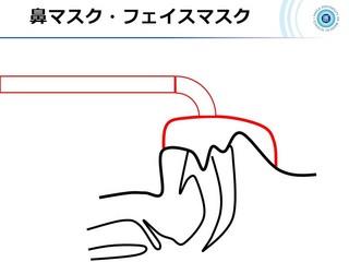血ガス呼吸管理図スライド165.jpg