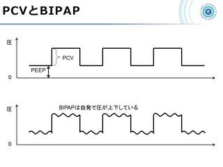 血ガス呼吸管理図スライド168.jpg