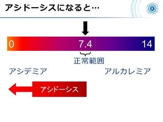 血ガス呼吸管理図スライド4.JPG