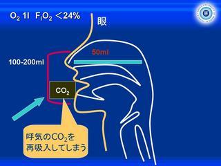 酸素スライド7.JPG