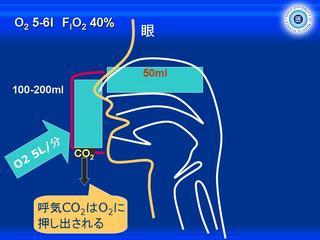 酸素スライド8.JPG
