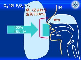 酸素スライド9.JPG