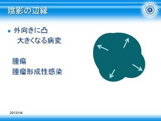 1腫瘤=外向きに凸.JPG