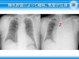 12胸水貯留によって縦隔、気管が圧排.JPG