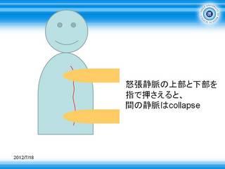 3下行性静脈怒張の確認.JPG