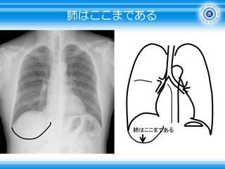 3肺はここまで.JPG