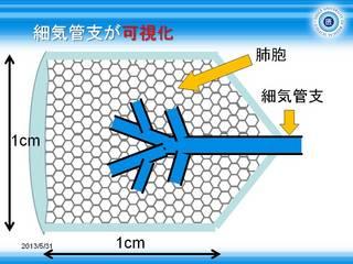 4細気管支の可視化.JPG