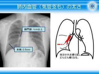 4肺内血管(気管支も)の太さ.jpg
