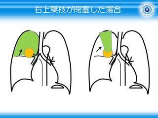 5右上葉がしぼむ=無気肺.JPG