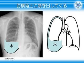 5胸水は肋横角上に顔を出してくる.JPG