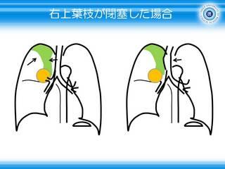 6無気肺は内向きに凸.JPG