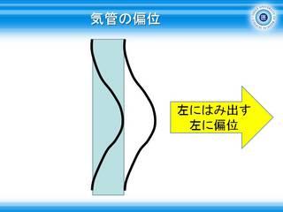 8気管が左に偏位.JPG