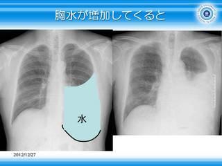 8胸水が増加してくると.JPG