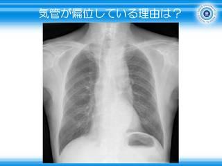 9気管が偏位している理由は.JPG