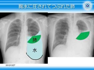 9胸水に圧されてつぶれた肺.JPG