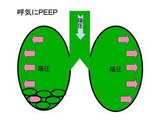 PEEPスライド3.JPG
