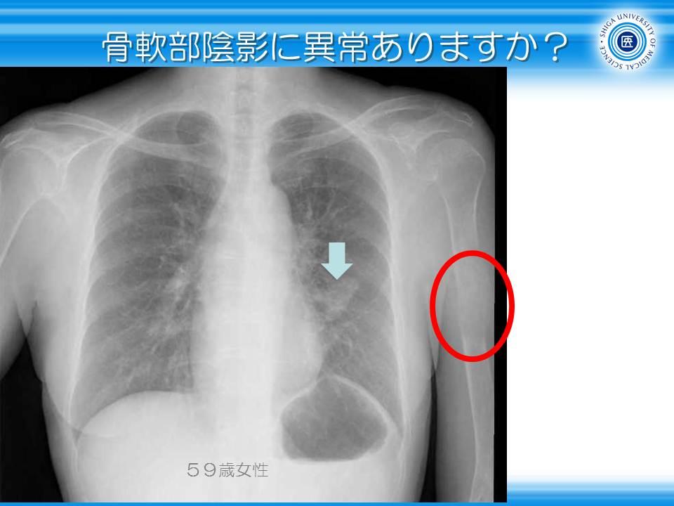 胸部レントゲン道場2・骨・軟部陰影に注目する1: やさしイイ ...