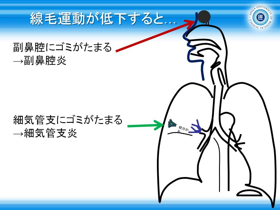 細 びまん 炎 汎 性 気管支